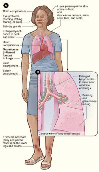 Sarcoidosis_signs_and_symptoms