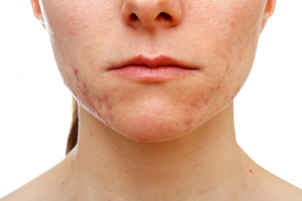 how-to-prevent-cystic-acne2