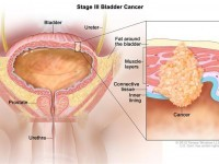 Symptoms Of Bladder Cancer