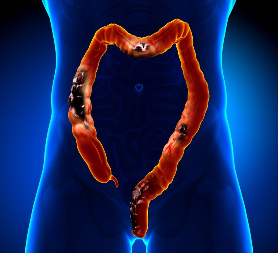Signs Of Colon Cancer In Women And Early Prevention