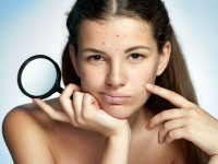 best ways to remove blackheads