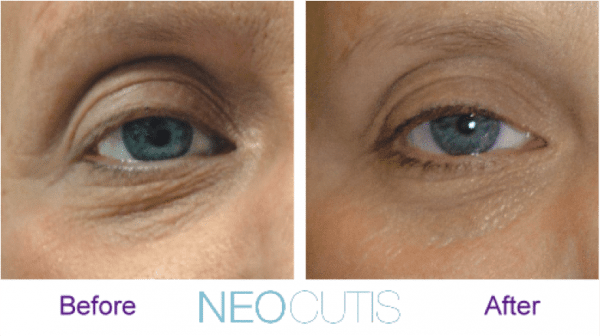 neocutis lumiere eye cream before and after