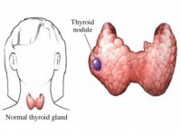 symptoms of thyroid nodules
