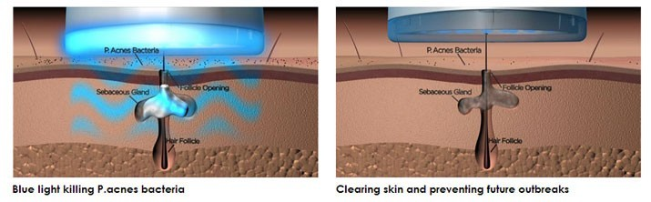 Attack and control acne at the source