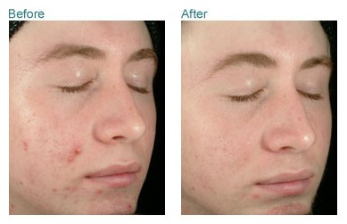 obagi clenziderm before and after