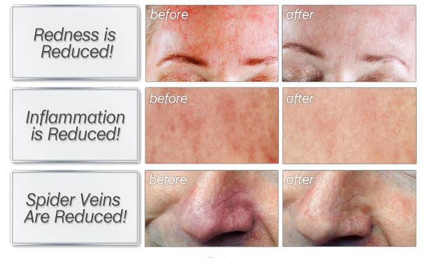 skinception rosacea before and after