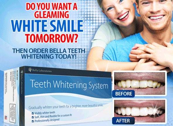 teeth whitening system