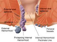 Hemorrhoids types
