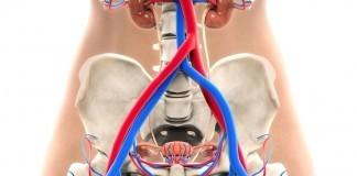 bladder cancer in women
